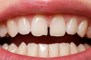 بالصور شكل الاسنان الطبيعي , جمال الاسنان يعبر عن سعادة الانسان 12354 11 310x205