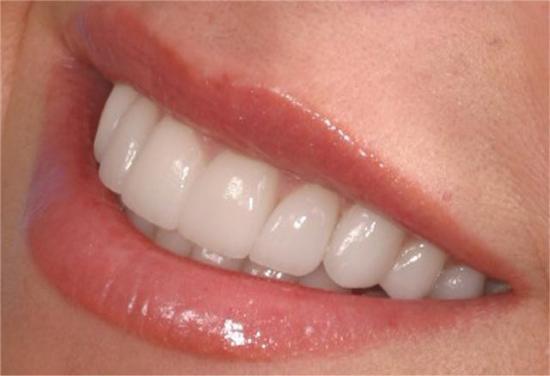 بالصور شكل الاسنان الطبيعي , جمال الاسنان يعبر عن سعادة الانسان 12354 3