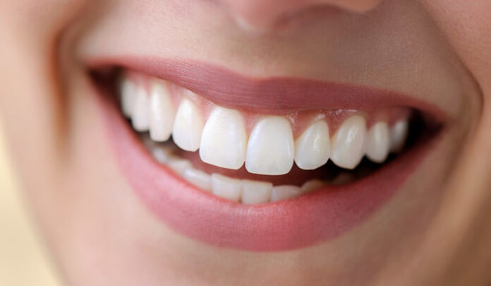 بالصور شكل الاسنان الطبيعي , جمال الاسنان يعبر عن سعادة الانسان 12354 4