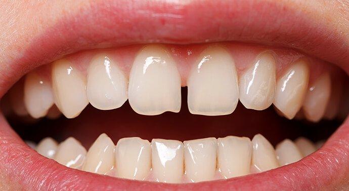 صور شكل الاسنان الطبيعي , جمال الاسنان يعبر عن سعادة الانسان