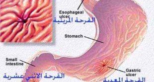 صورة اعراض قرحة المعدة والقولون , تعرف على الام قرح المعدة وكيفية الوقاية منها