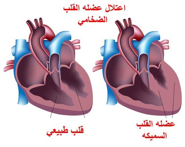 صور علاج قصور عضلة القلب , ما هي اسباب ضعف عضلة القلب