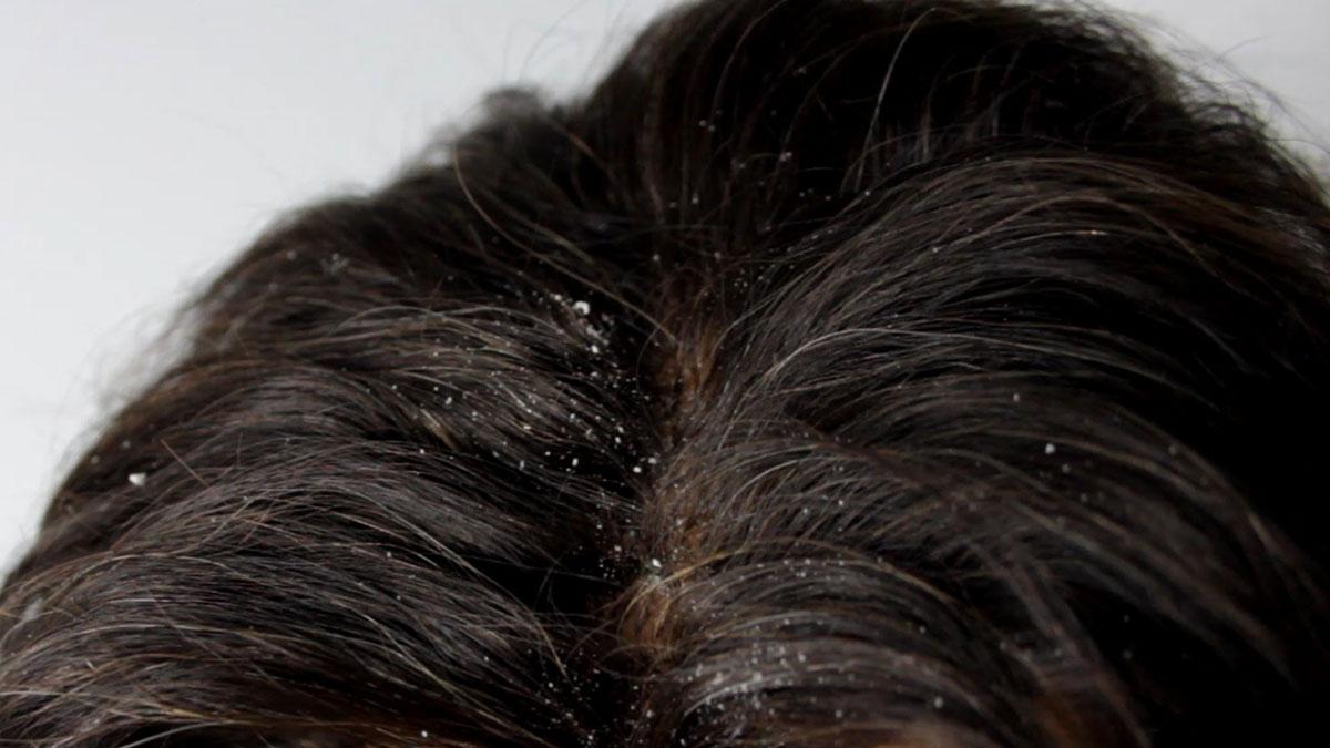 صورة علاج القشره للشعر الدهني , ماهي اسباب قشرة الشعر