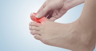 صور علاج الم اصبع القدم الكبير , طرق لتخفيف الم اصابع القدمين