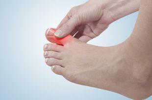 بالصور علاج الم اصبع القدم الكبير , طرق لتخفيف الم اصابع القدمين 12374 3 310x205