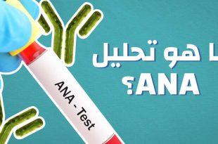 صور ما هو تحليل ana , تحليل ana و مناعة الجسم
