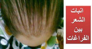صور انبات الشعر في اسبوع , افضل زيت لانبات الشعر