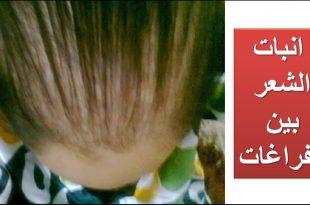 صورة انبات الشعر في اسبوع , افضل زيت لانبات الشعر