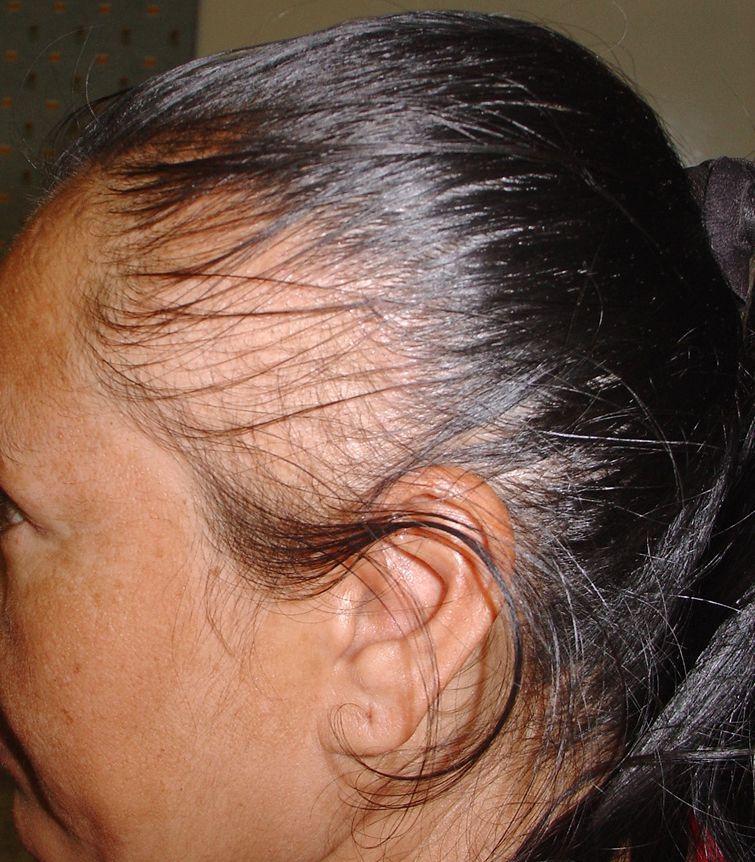 صورة لف الشعر طاقية يطول الشعر , الطاقية تفرد الشعر