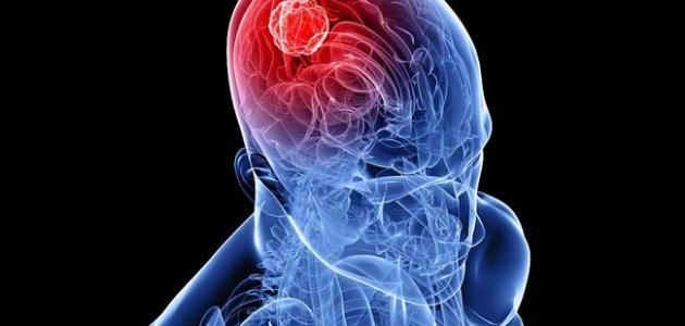 صورة اعراض سرطان الدماغ , مؤشرات اورام المخ