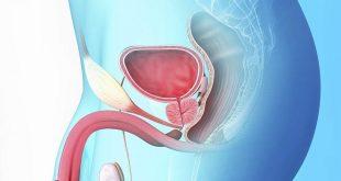 صورة اعراض البروستاتا , البروستاتا من اخطر الامراض